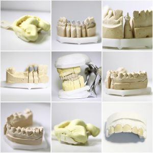 Dental Crown Services - Crowns - Family Dental Practice - Brighton - UK